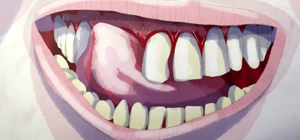 teeth_holbrooks_10.jpg
